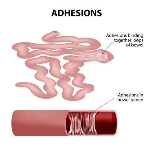 Intestinal Adhesion surgery