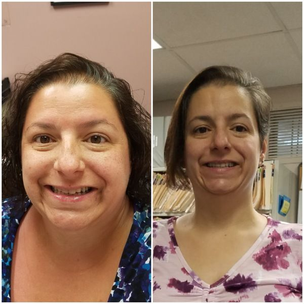 Face Before and After Photo