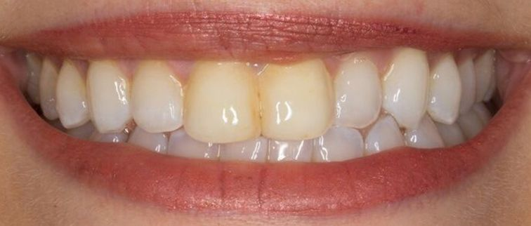 before porcelain veneers