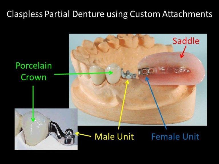 claspless denture