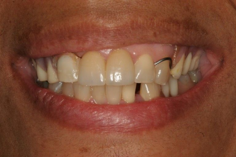 man with partial denture in