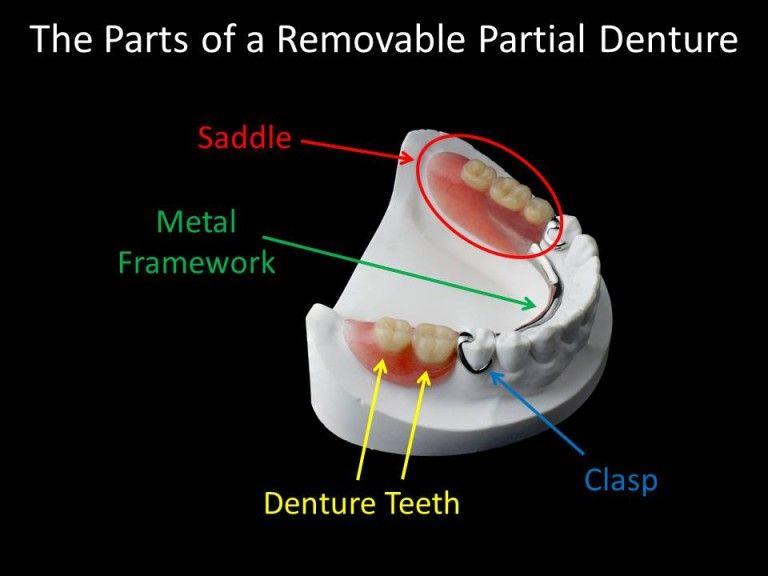 partial denture diagram