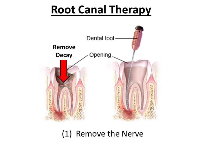 removal of nerve
