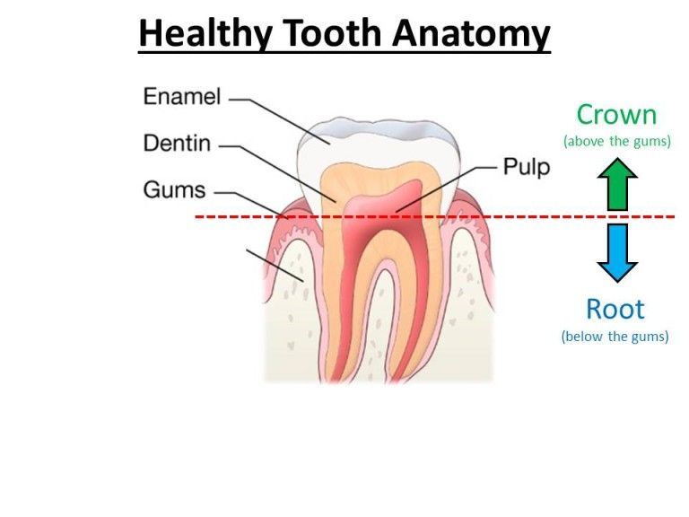 infection in root canal