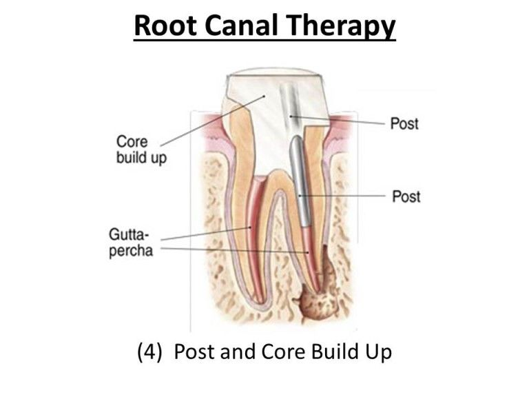 treating root canal infection