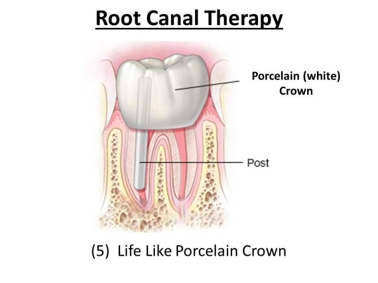 porcelain crown after root canal