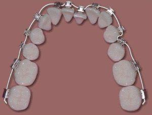 wire braces