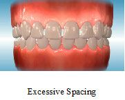 Excessive Spacing - Orthodontics in Marina Del Rey, CA