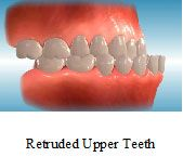 Retruded Upper Teeth