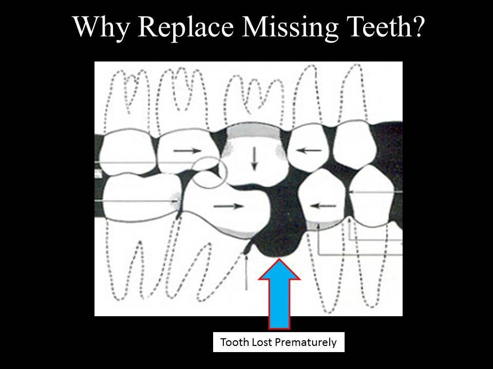 Replace Missing Teeth, Marina Del Rey