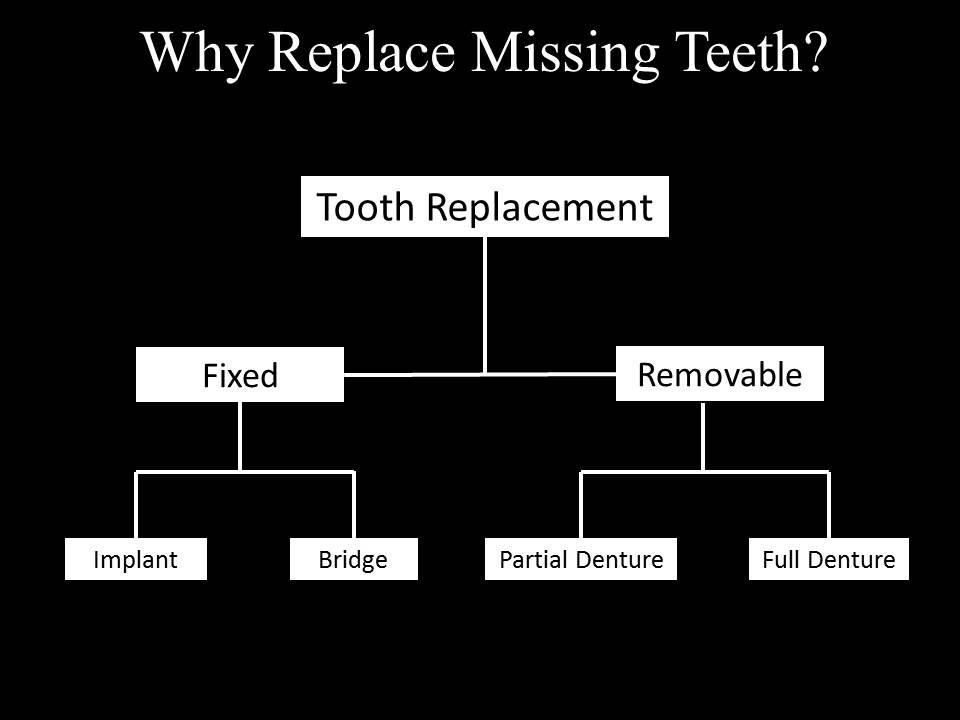 diagram for replacing missing teeth