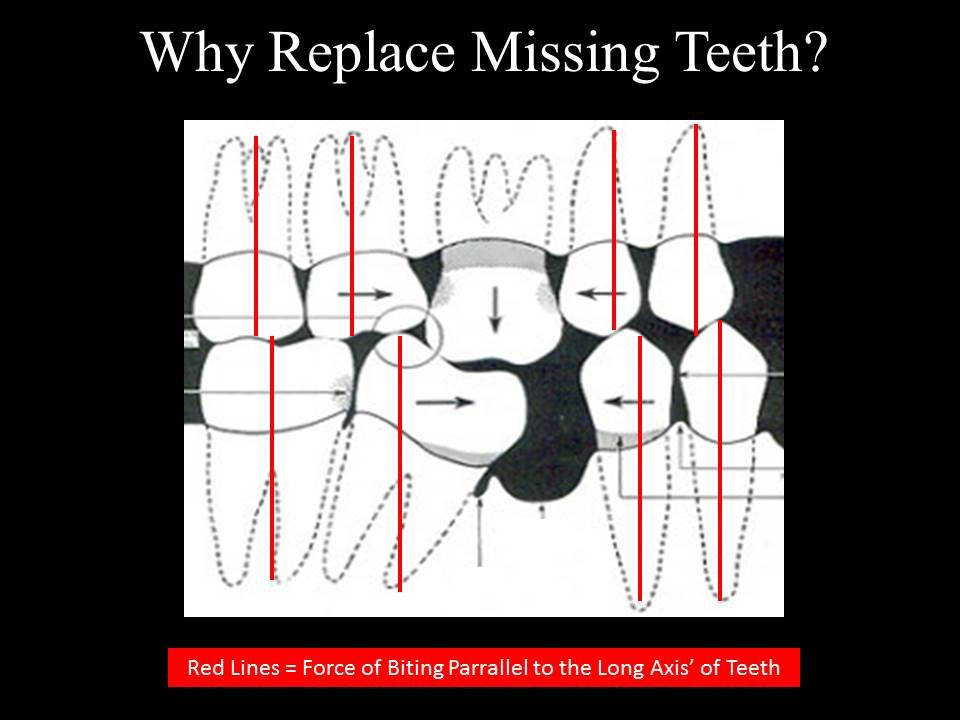Shifting/tilting of teeth - Marina Del Rey