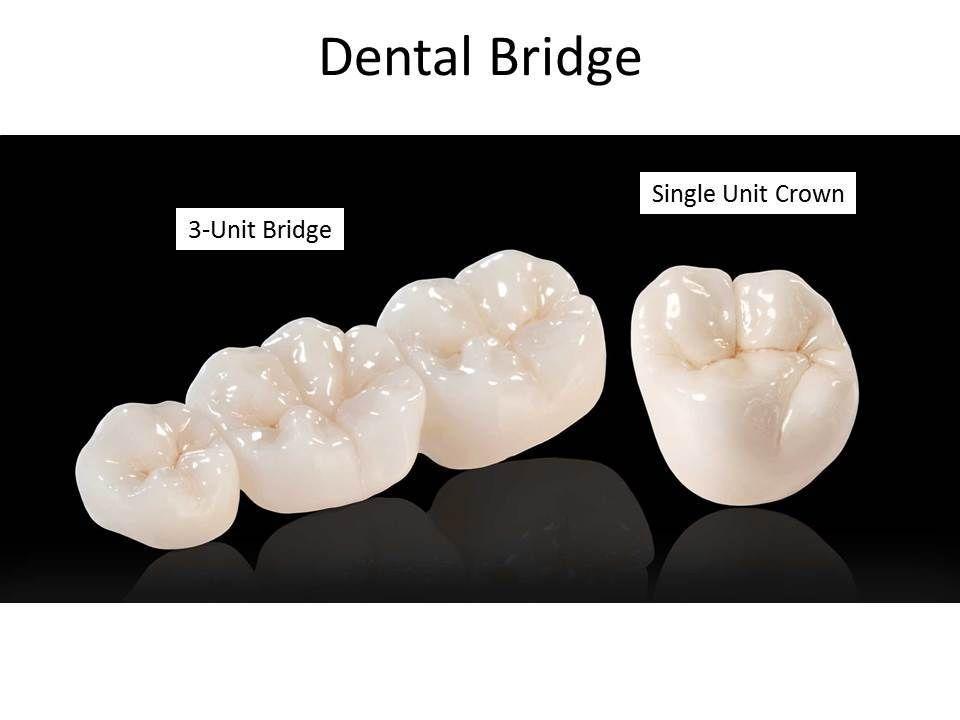 Single Unit Dental Crown Marina Del Rey