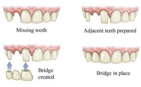 Dental Bridge Marina Del Rey