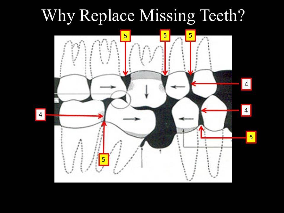 Gaps between the teeth - Marina Del Rey