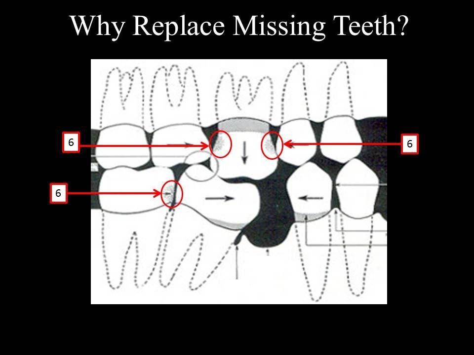 Tooth decay - Marina Del Rey