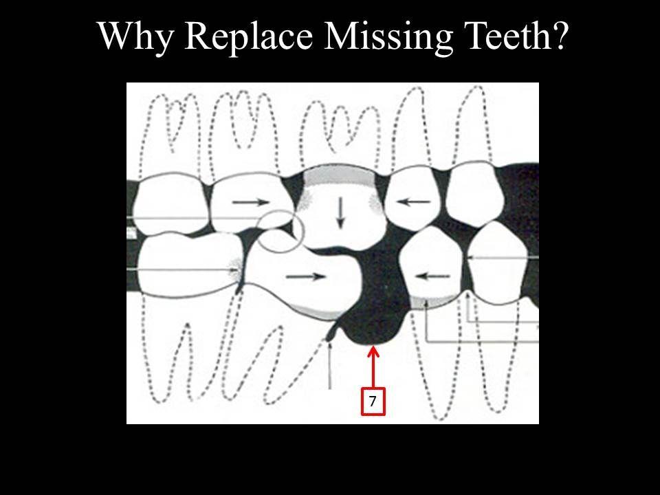 Teeth dissolving away - Marina Del Rey