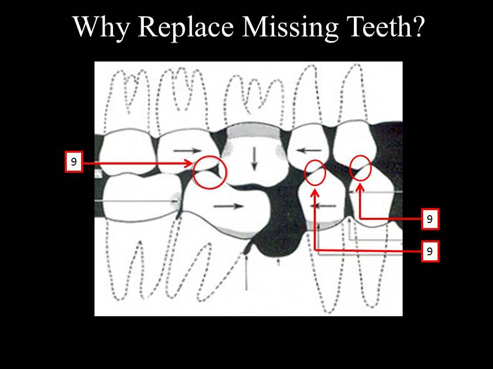 why replace missing teeth with implants