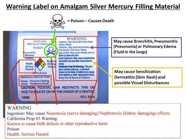Warning label on Amalgam Silver Mercury filling material