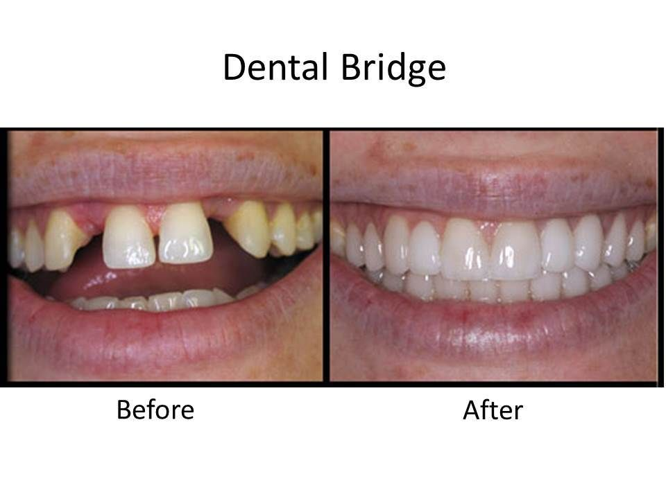 before and after dental bridges