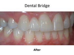 after dental bridges
