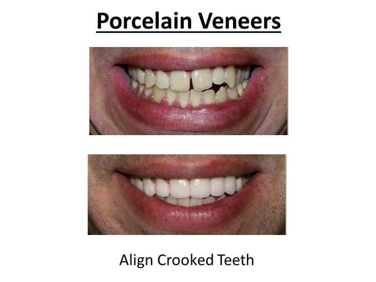 benefits of porcelain veneers