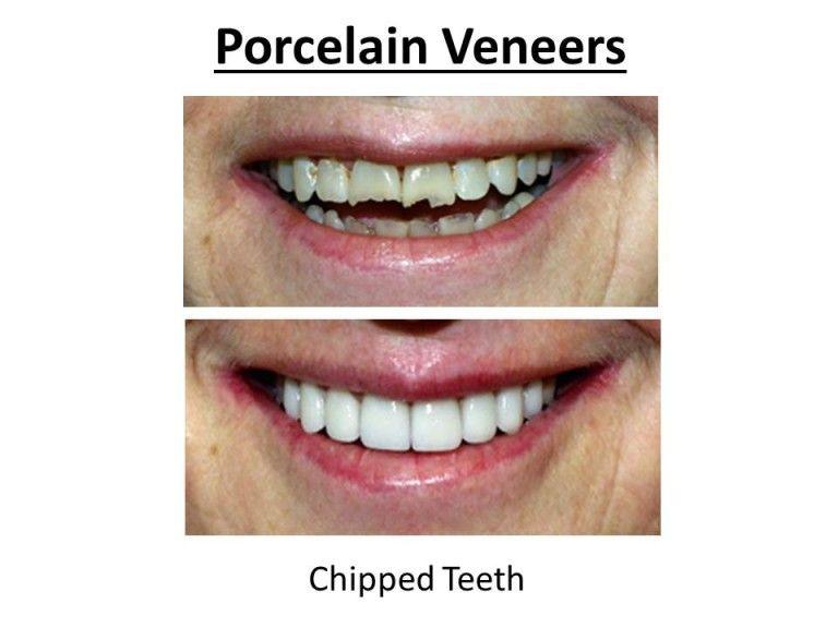porcelain veneers for chipped teeth