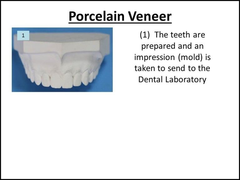 diagram of how porcelain veneers are made