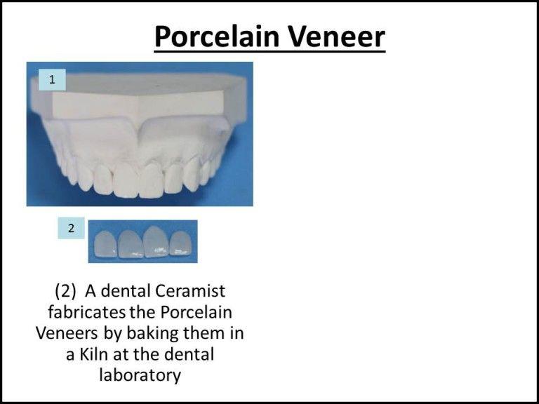 how ceramists make porcelain veneers