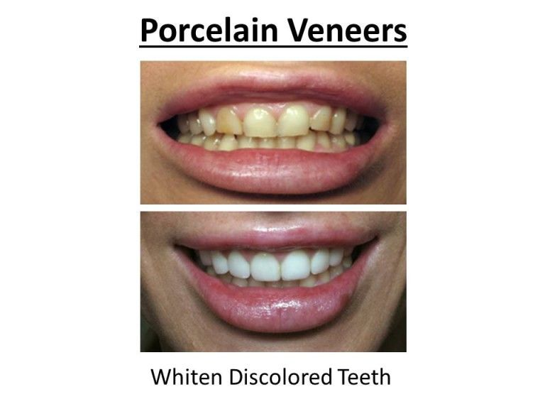 porcelain veneers for discoloration
