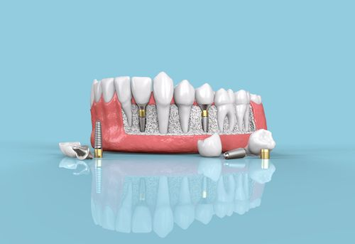 Dental Implant in Omaha
