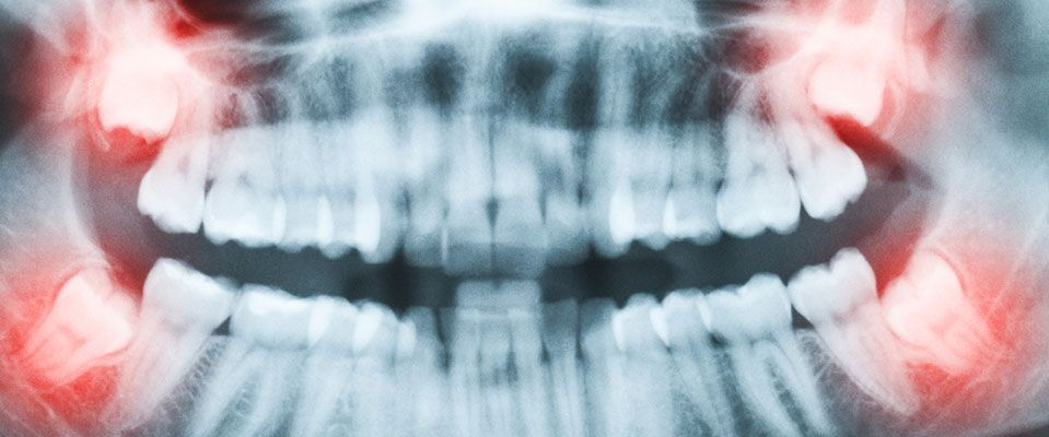 Problem with your Wisdom teeth