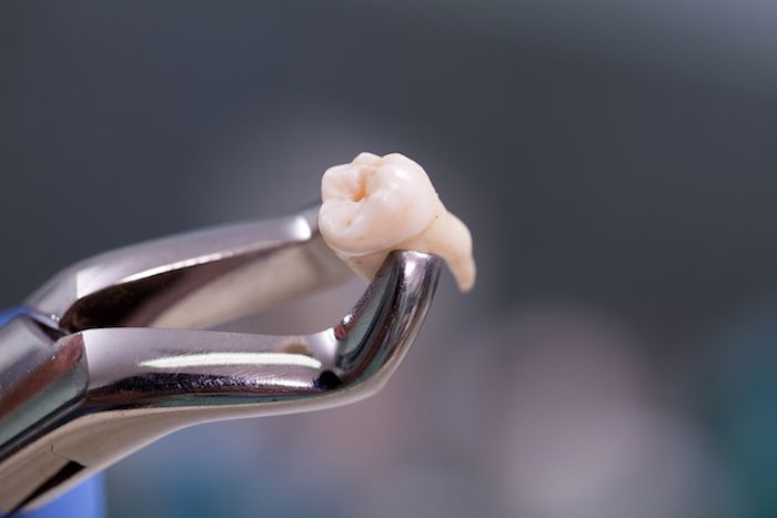 What to Expect During a Dental Extraction Procedure