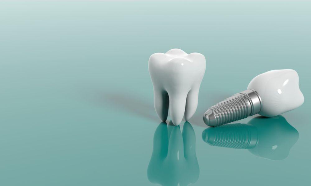 Causes of Dental Implant Failure