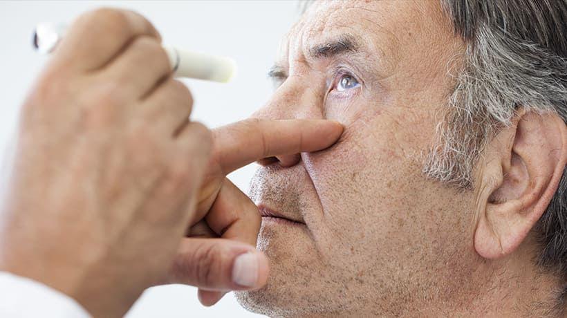 Cataract Management