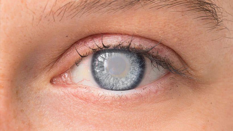 Glaucoma Testing & Management