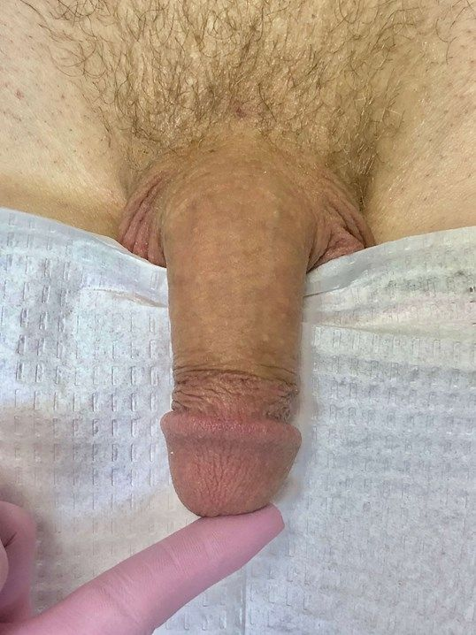 Before penile injections