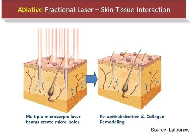 skin equipment