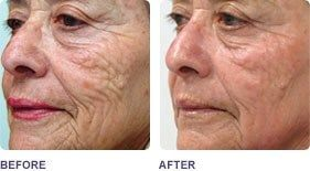 before and after fractional CO2 Lasers