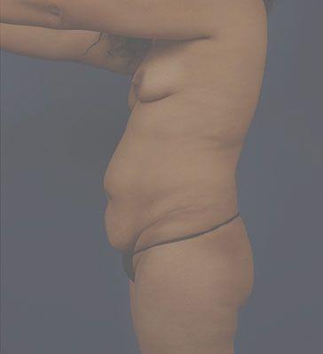 Left Profile Photo Sample