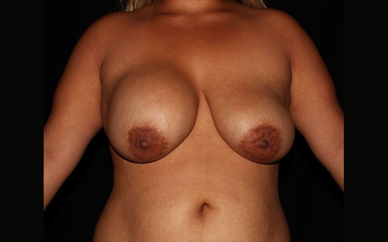Before breast revision