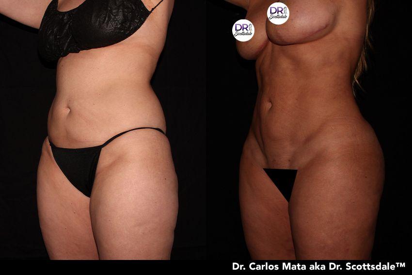 Liposuction Nyc