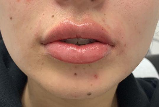 After lip augmentation