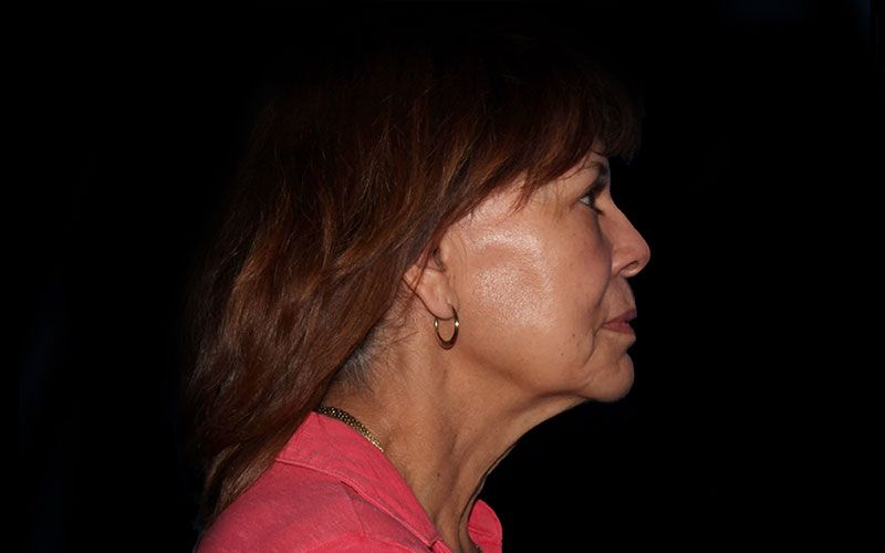 Before neck lift