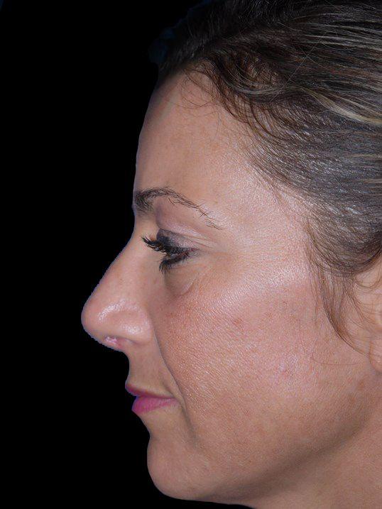 After rhinoplasty
