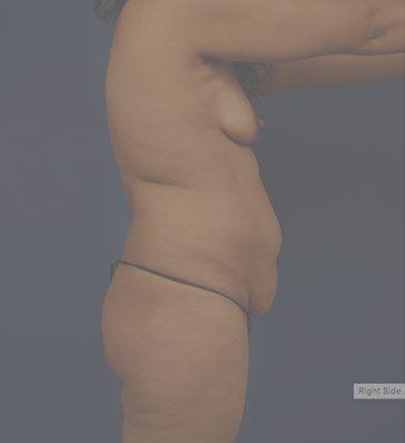 Right Profile Photo Sample