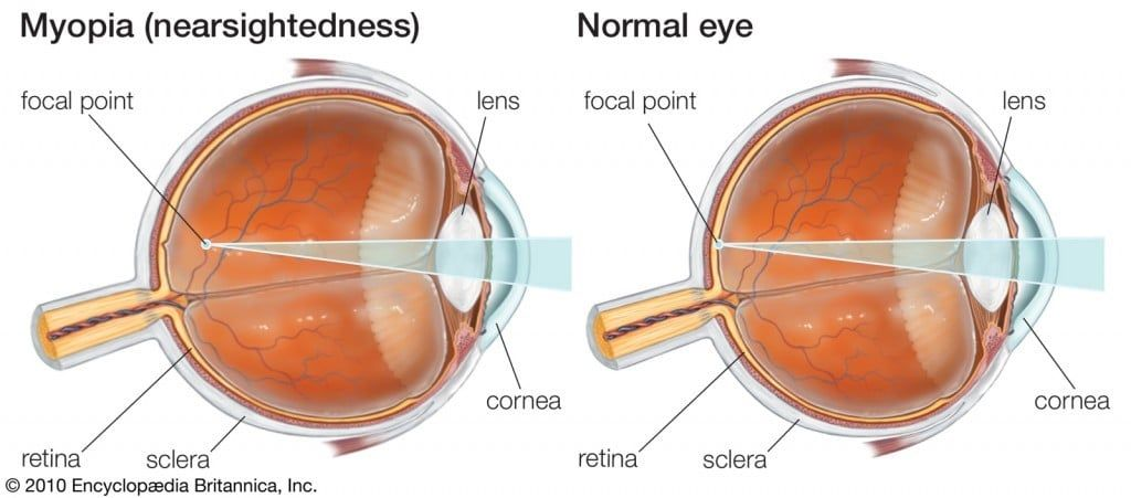 ortho k for myopia