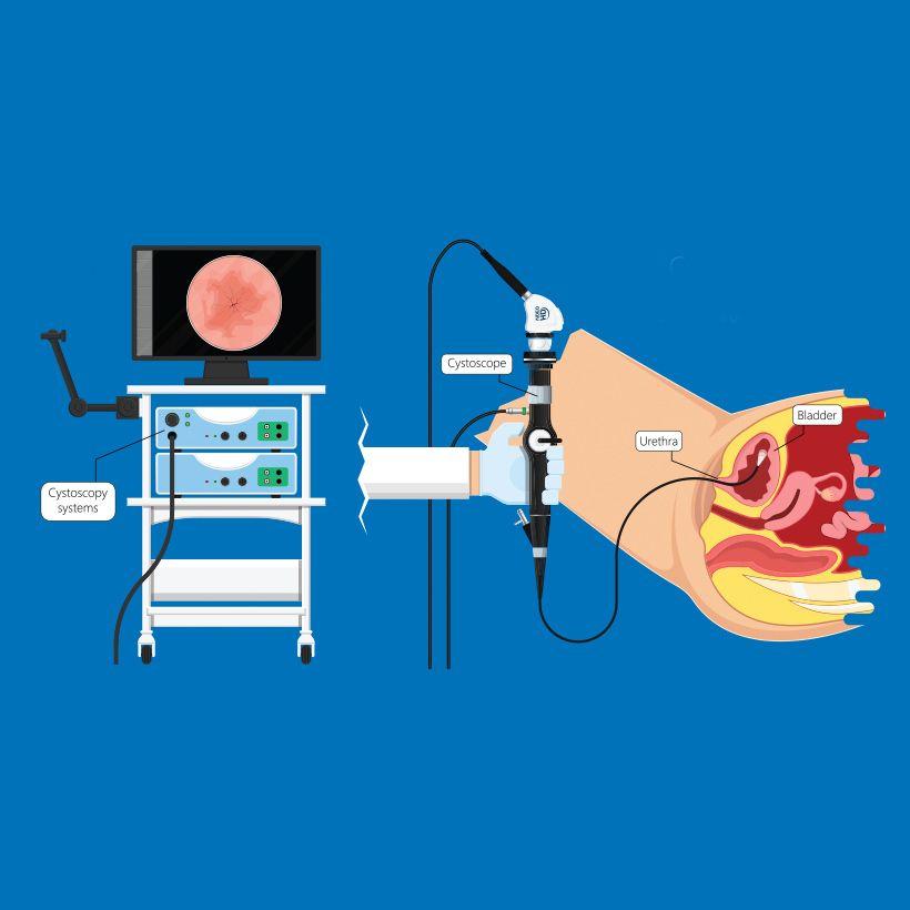 Cystoscopy and Ureteroscopy