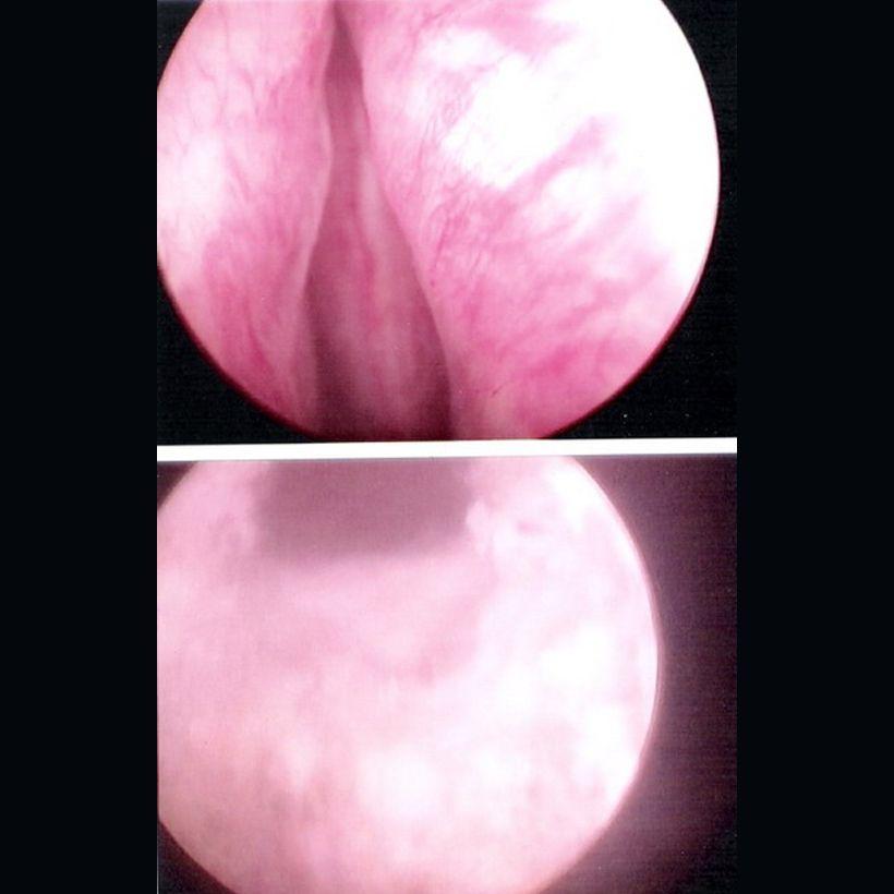 Laser Vaporization of the Prostate