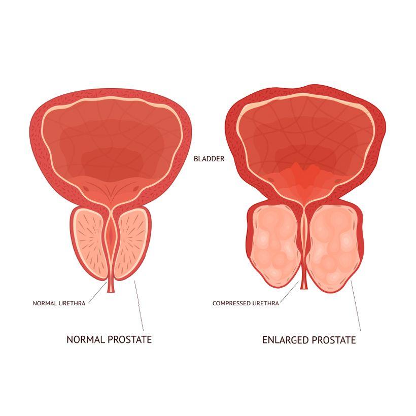 Prostatitis and BPH